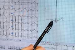 Při zátěžovém testu pečlivě hodnotíme srdeční aktivitu - EKG